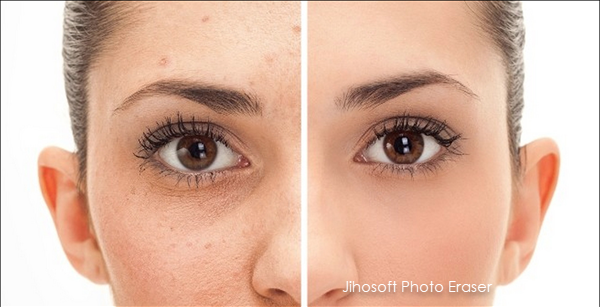 Remove Wrinkles, Pimples, Acne and Skin Blemishes from Photos
